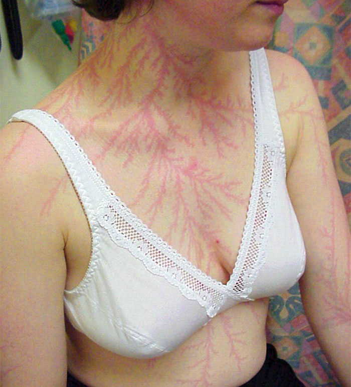Scars-After-Surviving-Lightning-Strike-Lichtenberg-Figures-Photos-18